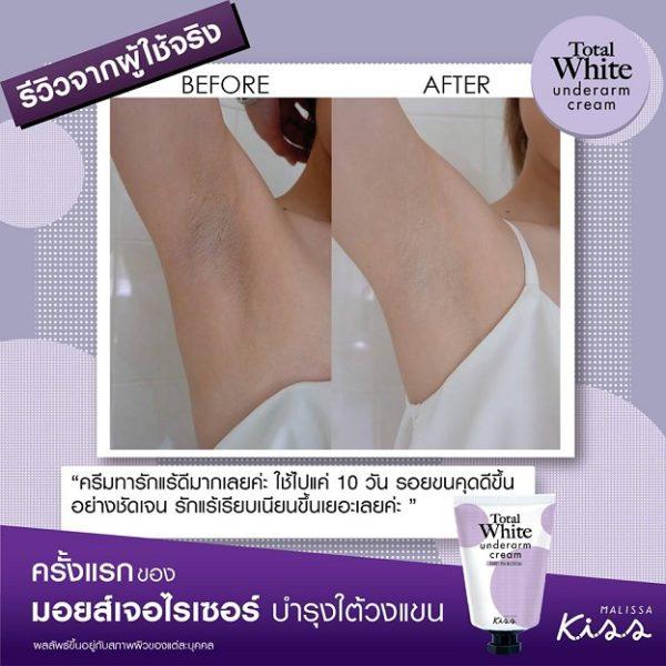 Malissa Kiss Total White Underarm Cream